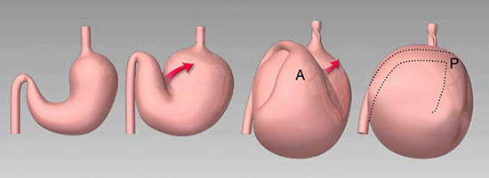 illustration dilatation torsion estomac
